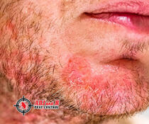 Have you discovered that you are allergic to mites? In these cases, it's ve…